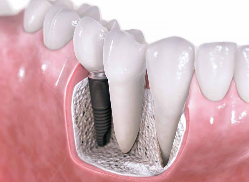 استعواض الأسنان عن طريق عملية زراعة الأسنان