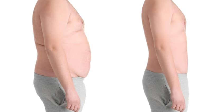 عملية شفط الدهون لذكر