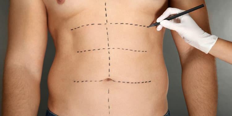 تخطيط جراح قبل اجراء عملية نحت الجسم