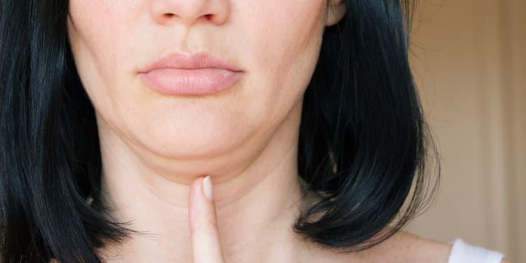 امرأة قد تحتاج الى إزالة وعلاج الذقن المزدوج
