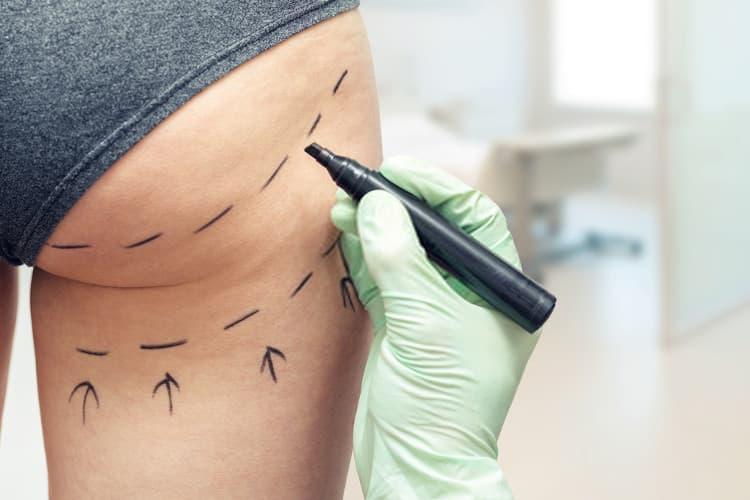 طبيب يجهز المريضة قبل عملية شد المؤخرة