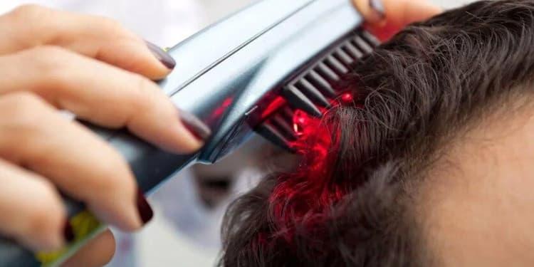 علاج تساقط الشعر بالليزر منخفض المستوى