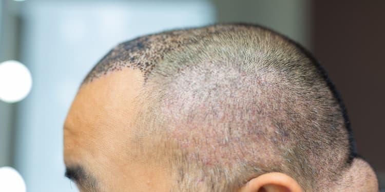 نتائج زراعة الشعر لذكر