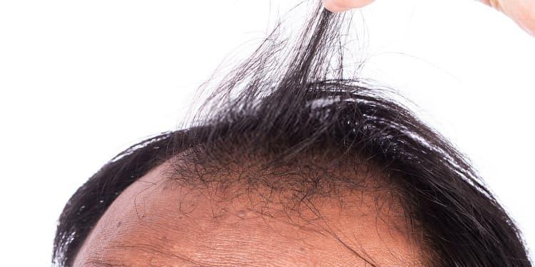 تساقط الشعر المزروع من الأثار الجانبية لعملية زراعة الشعر