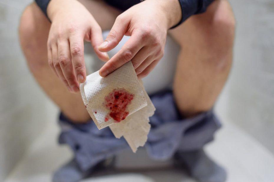 أسباب نزول دم مع البراز وطرق التشخيص والعلاج دوت طب