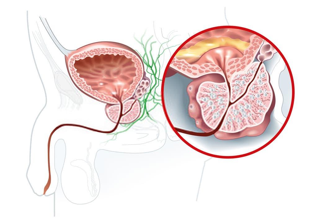 أعراض تضخم البروستاتا