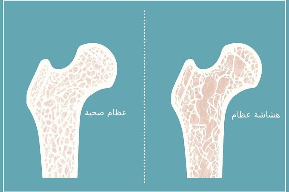الفرق بين العظام الصحية وهشاشة العظام