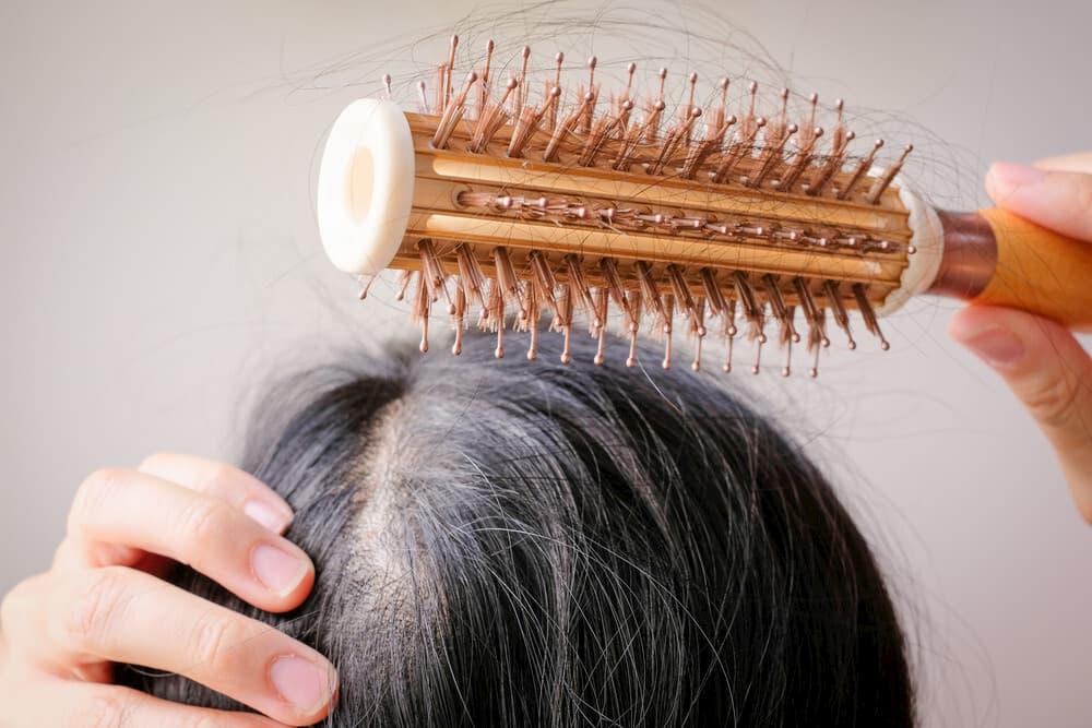 تساقط الشعر للنساء