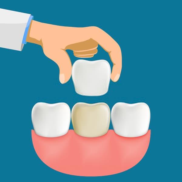 هل تلبيس الأسنان مؤلم