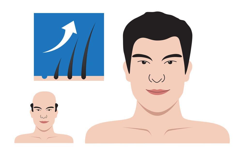 أهم فوائد زراعة الشعر