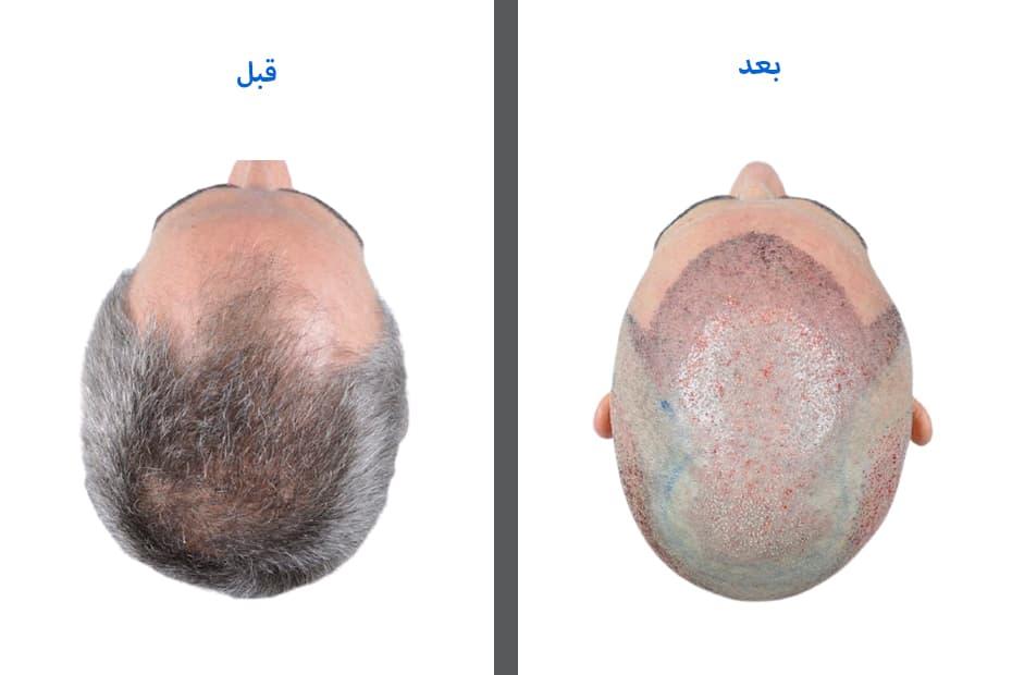 تجربتي بعد زراعة الشعر