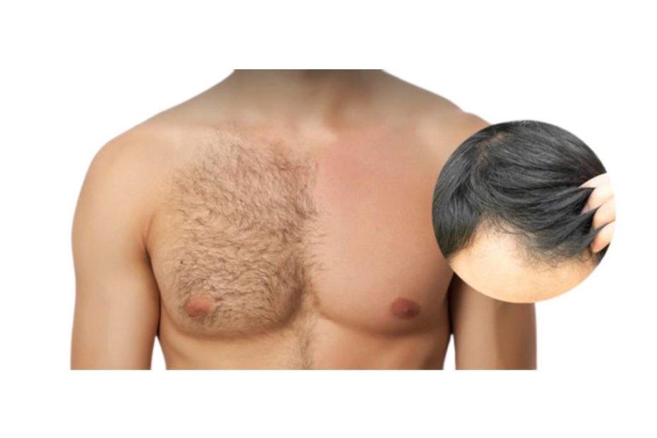 زراعة الشعر من الصدر